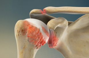 Rheumatoid Arthritis Shoulder Symptoms in Adults